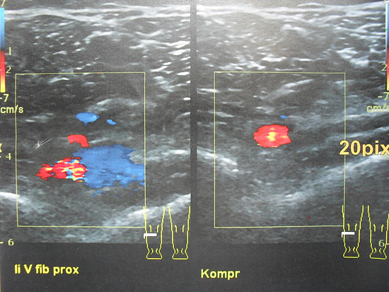Tiefe Venenthrombose im Ultraschallbild